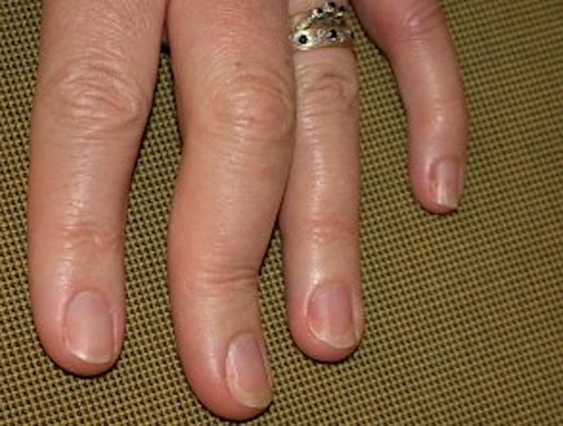 Psoriatic arthritis in the hands Symptoms, pictures, and