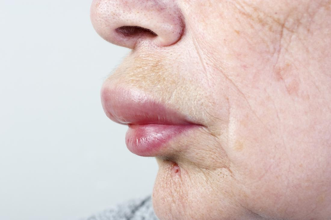 Face swelling: Causes, treatment, and when to see a doctor