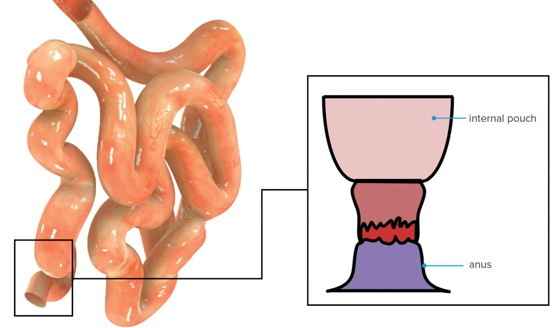Ulcerative Colitis Surgery Procedure Recovery And What To