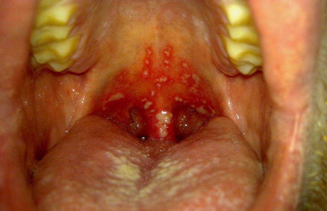 Gingivostomatitis: Symptoms, causes, and treatment