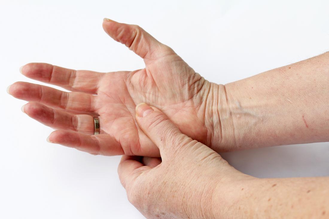 Rheumatoid arthritis (RA): Signs and symptoms