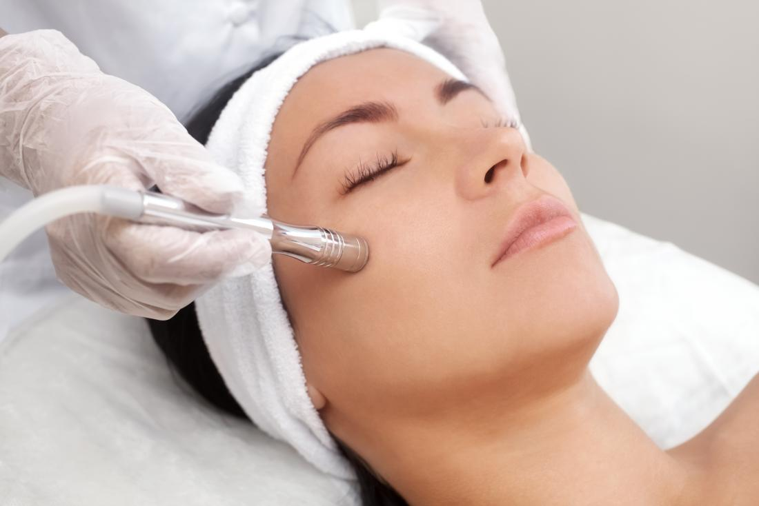 Microdermabrasion: Benefits, uses, procedure, and risks