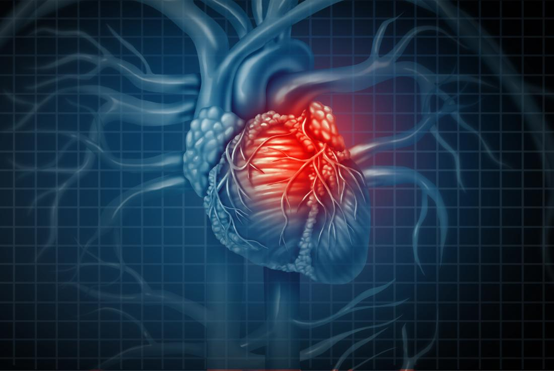 Heart attack: New finding may change the face of treatment