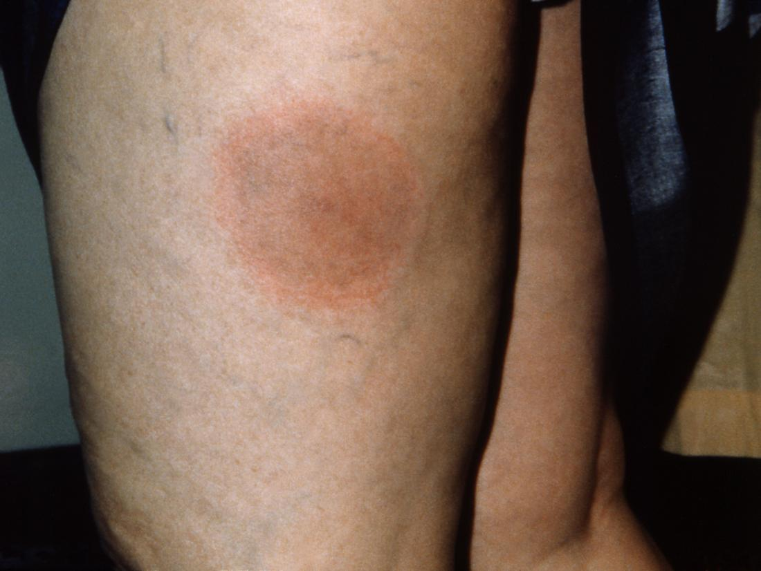 Lyme disease rash: Symptoms, stages, and identification