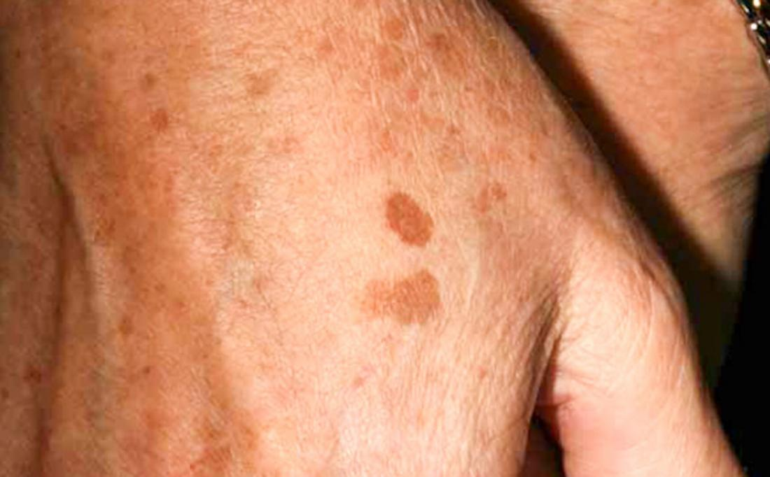 Freckles: Causes, identification, and risks