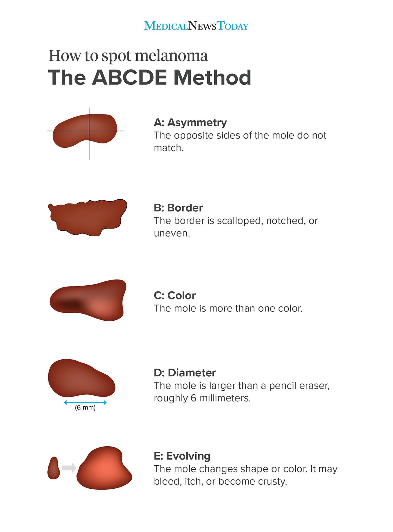 How to spot melanoma infographic - the ABCDE method