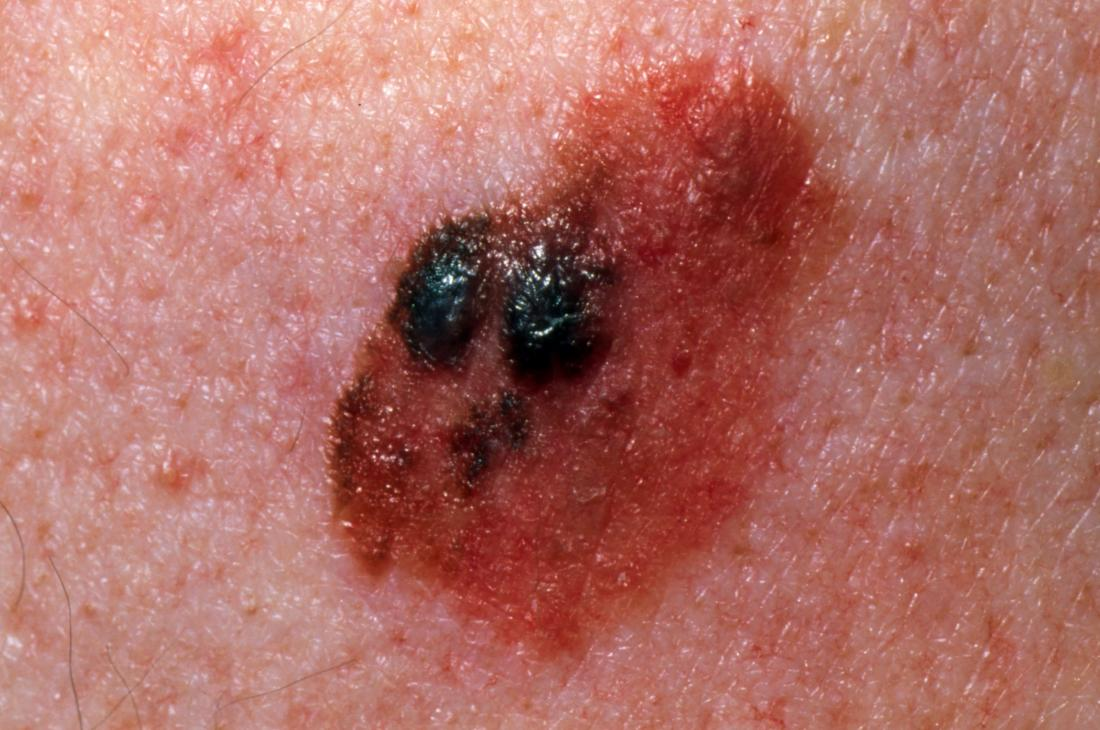 Skin Cancer Symptoms Types And Warning Signs