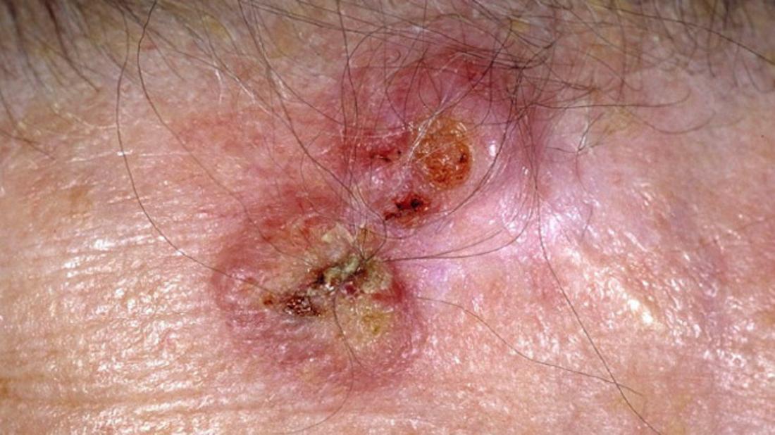плоскоклеточный рак <br> Фото предоставлено DermNet New Zealand </ br>