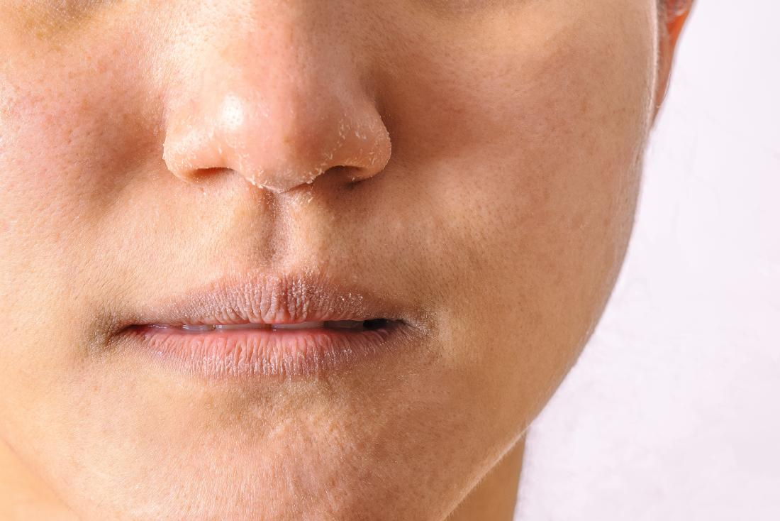 Eczema on the lips: Types, triggers, causes, and treatment