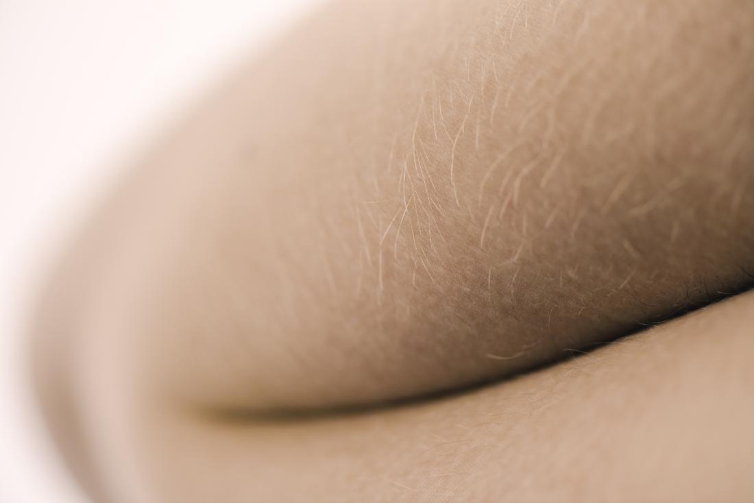Excessive or unwanted hair in women: Causes and natural
