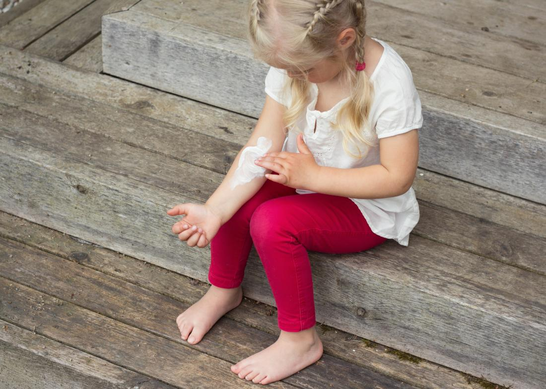Severe eczema: Treatments for adults and children