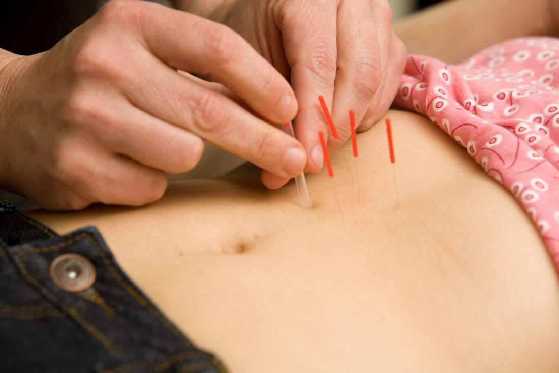 Acupuncture for fertility: Effectiveness, safety, and side