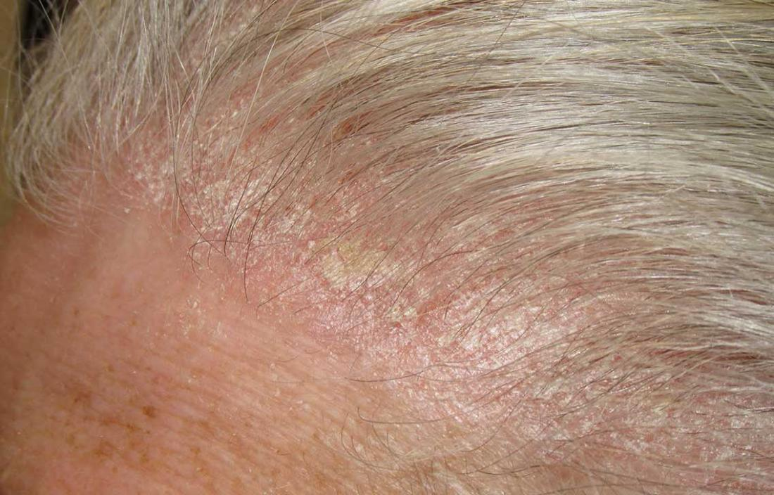 Sores and scabs on scalp: Pictures, causes, and treatment