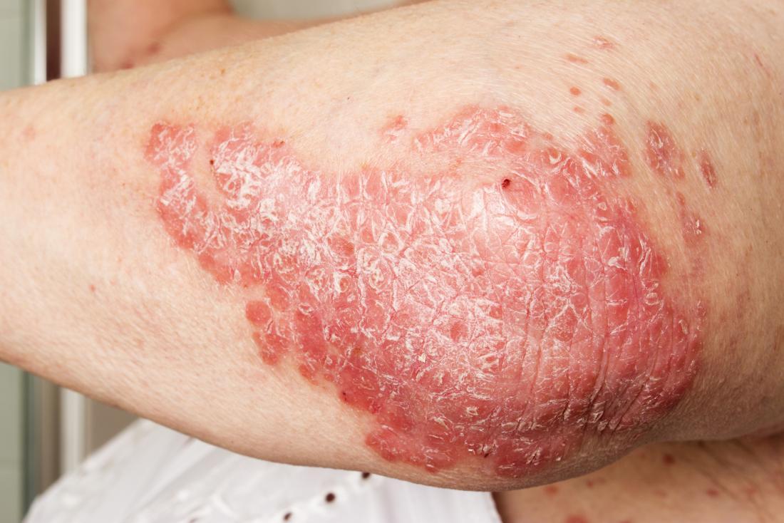 psoriatic rash