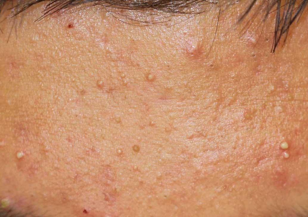 Psoriatic Arthritis Rash Pictures Symptoms And Treatment