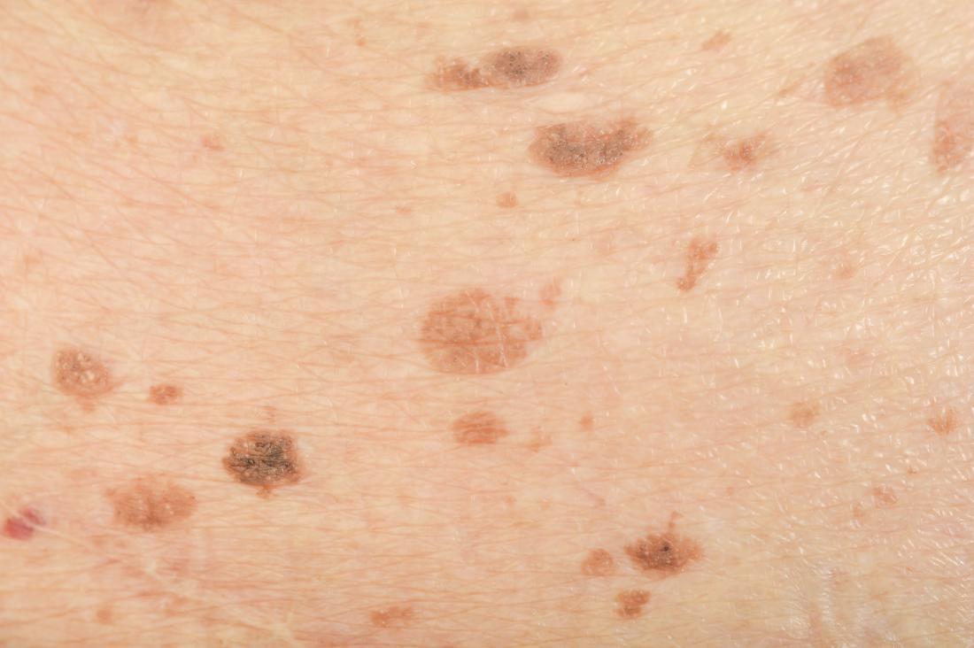 Melasma freckles close up