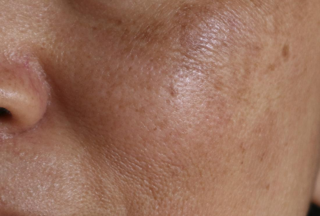 Melasma: Causes, symptoms, pictures, treatment