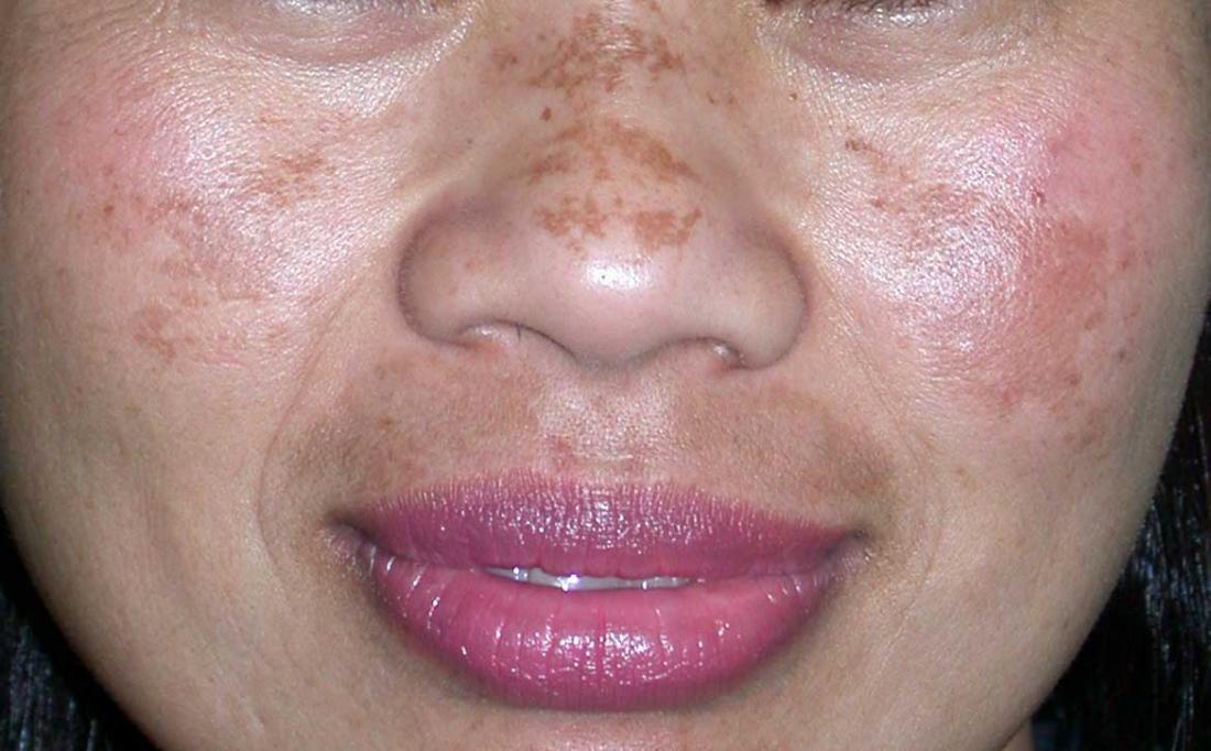 Melasma on woman's nose and cheeks