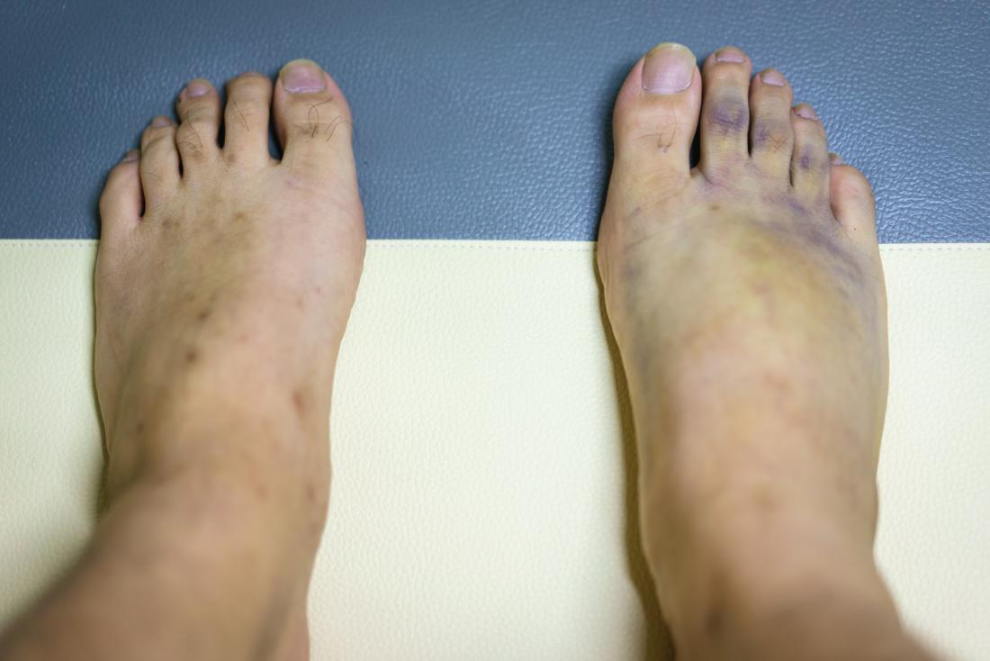 Purple feet: Causes and treatment
