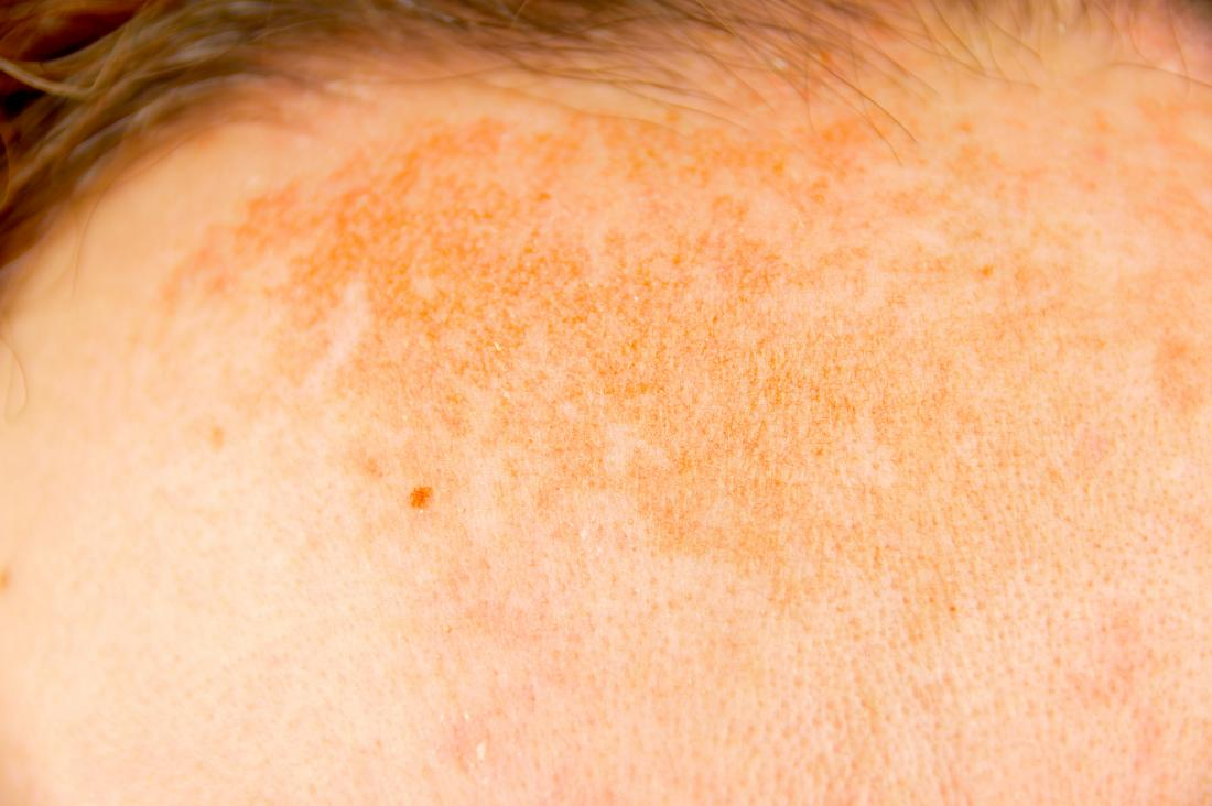 hyperpigmentation on forehead on skin.