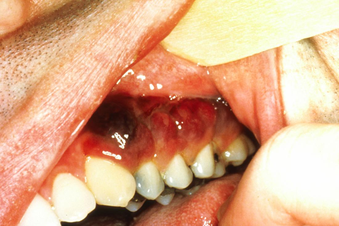 HIV mouth sores: Pictures, causes, treatment, and prevention