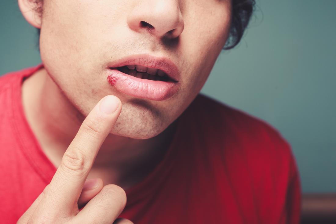 como quitar los herpes de la boca
