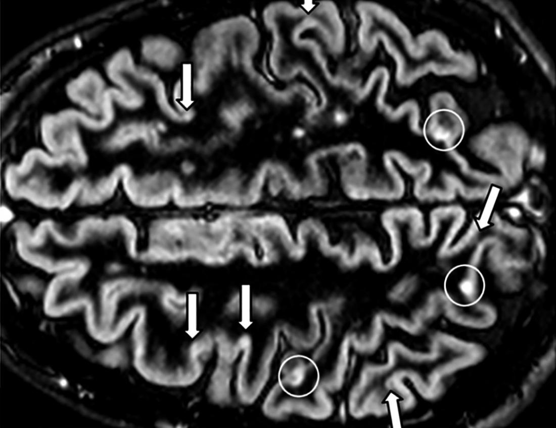 MS brain lesions: Pictures and prognosis