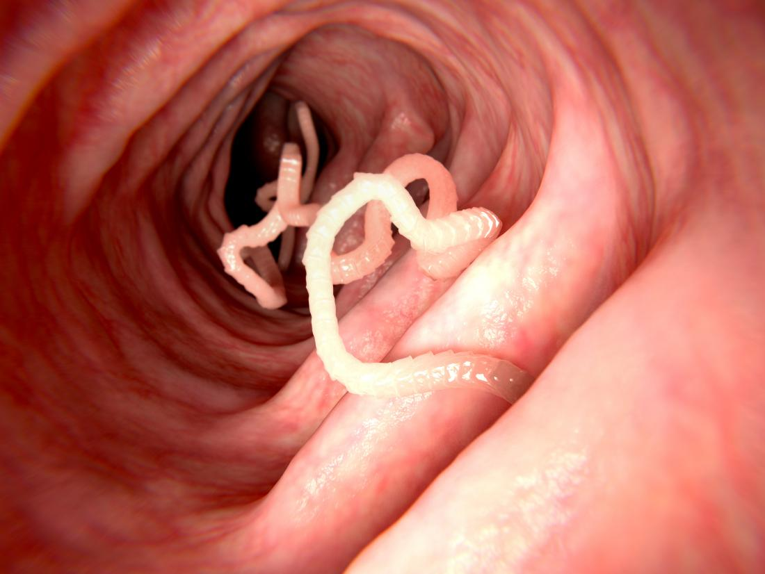 Intestinal Worms Pictures, Symptoms, And Treatment-6413
