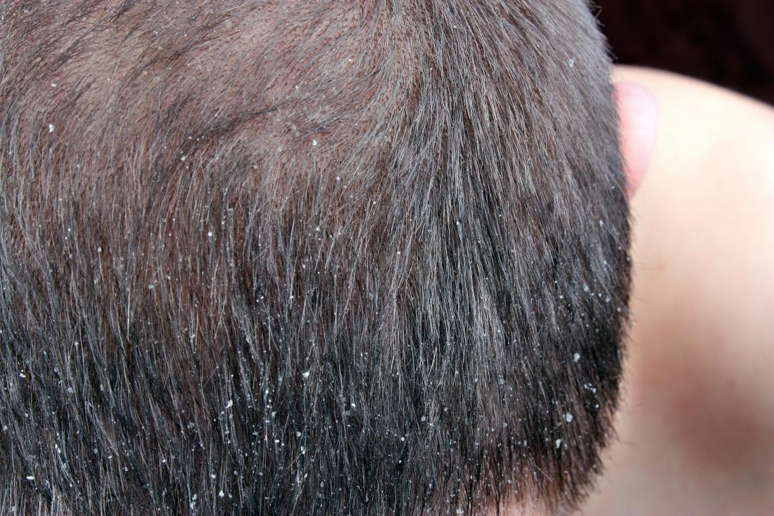 Lice vs  dandruff: Differences, pictures, and symptoms
