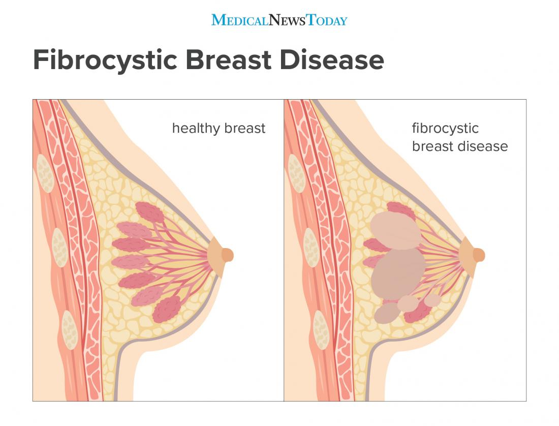 Fibrocystic Breast Disease Causes Symptoms And Treatment