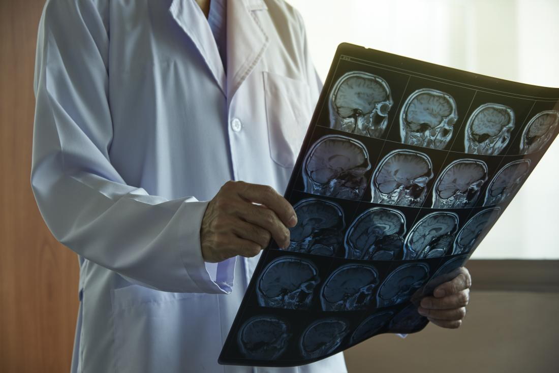 Ventriculoperitoneal shunt: Types, procedure, risks, and recovery