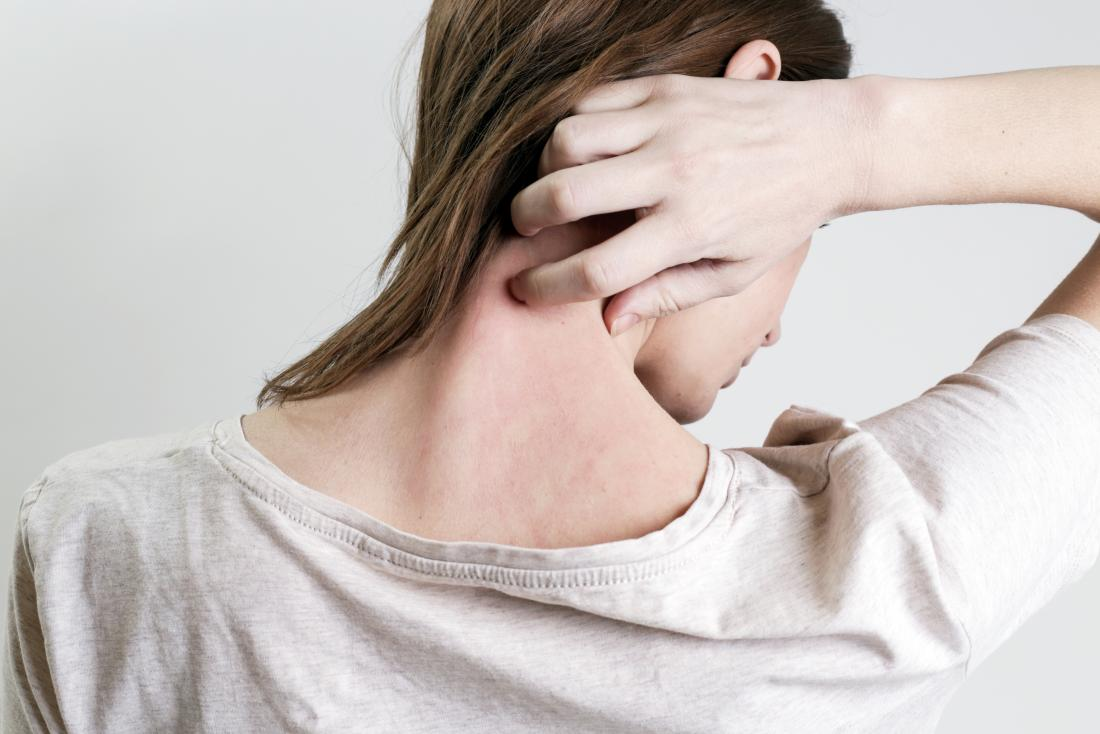 Castor oil for psoriasis: Does it work and is it safe?
