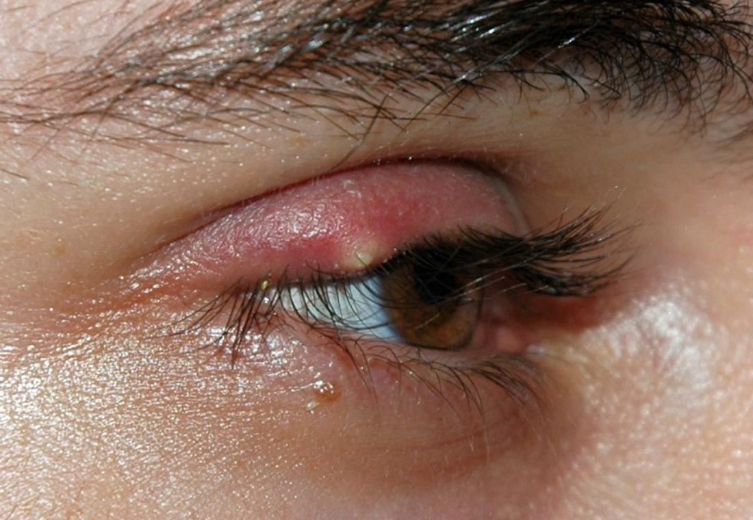 Chalazion: Pictures, causes, and treatment