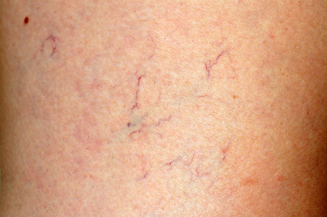 purple veins on thighs