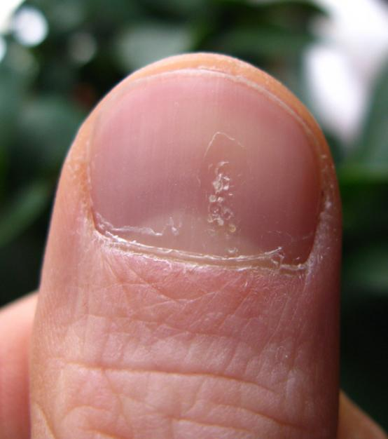 Psoriatic arthritis and nails: Changes, pictures, and treatment