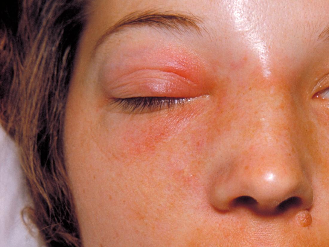 Orbital cellulitis: Symptoms, causes, and treatment