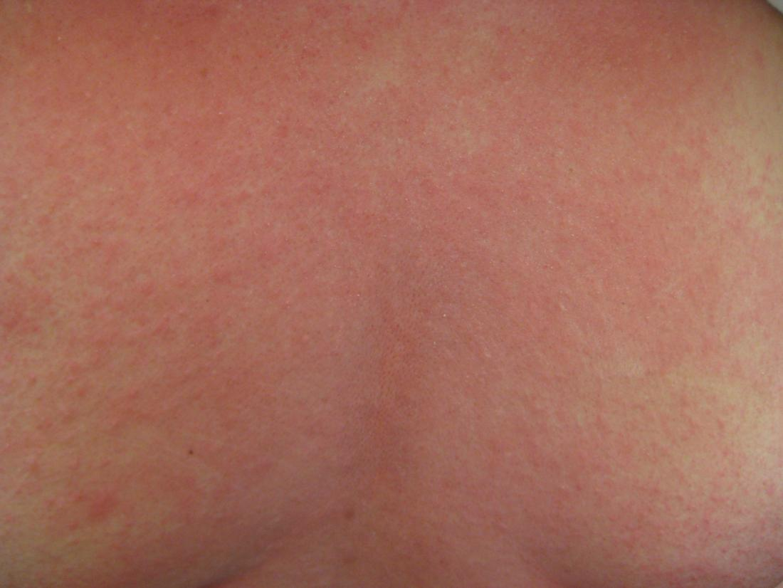 Strep throat and rash: Pictures, causes, and when to see a