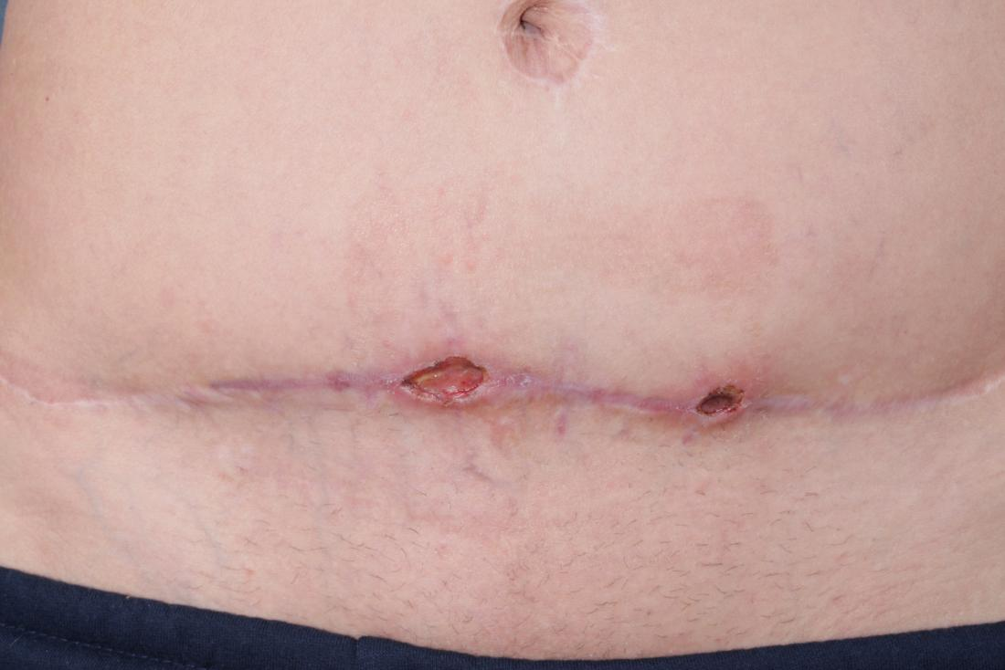 Post-cesarean wound infection: Causes and treatment