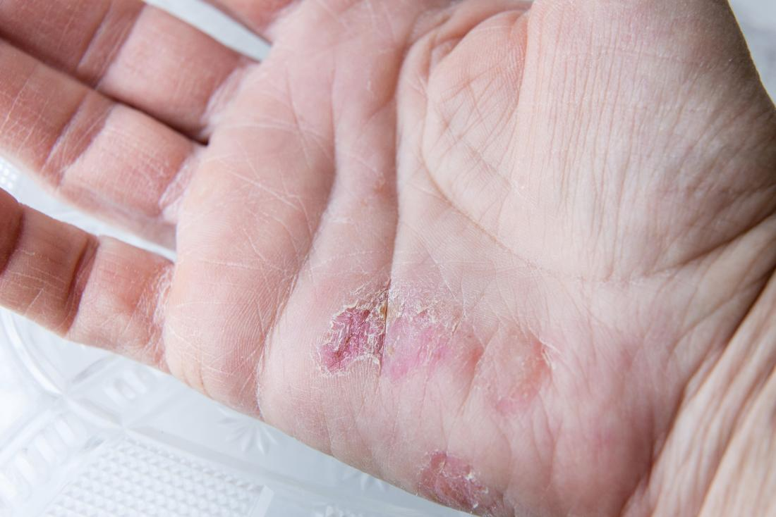 Winter rash: Causes, treatment, and prevention