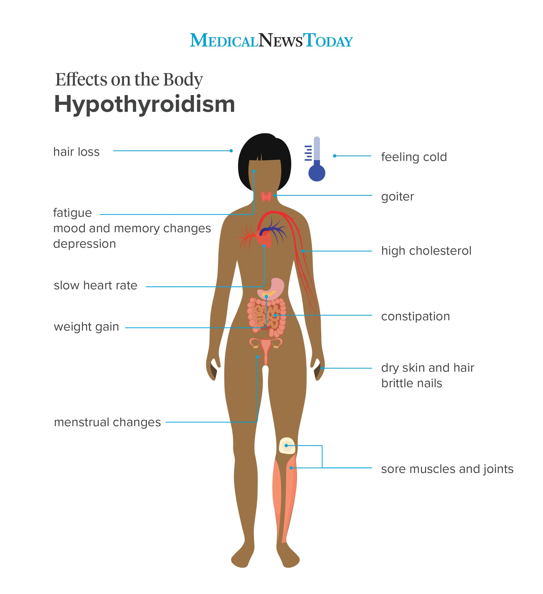 Hypothyroidism symptoms: 12 signs to look out for