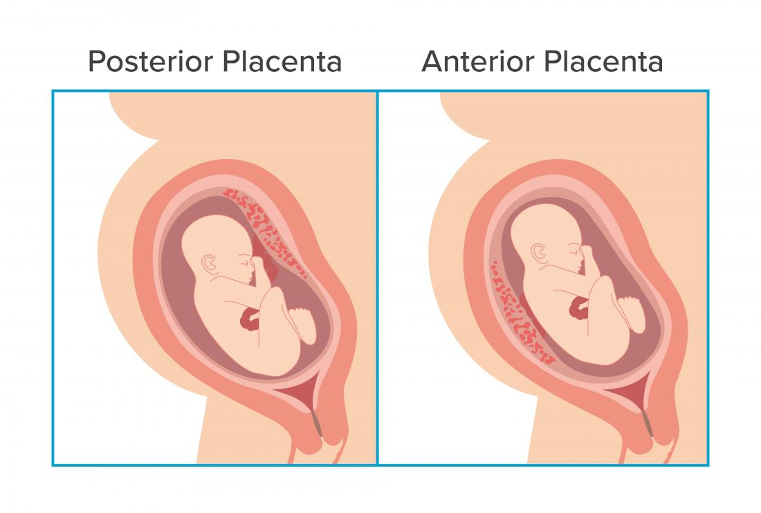Anterior placenta illustration.