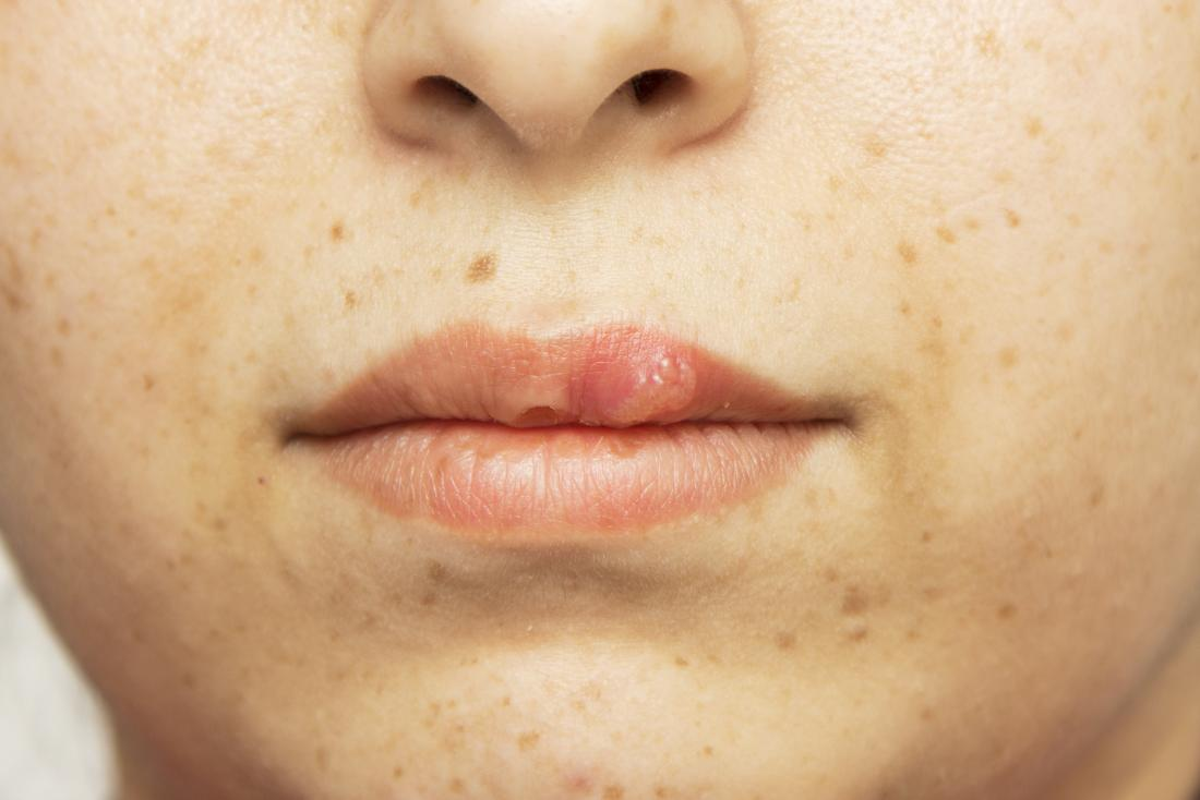 Mouth sores: Causes, treatment, and pictures