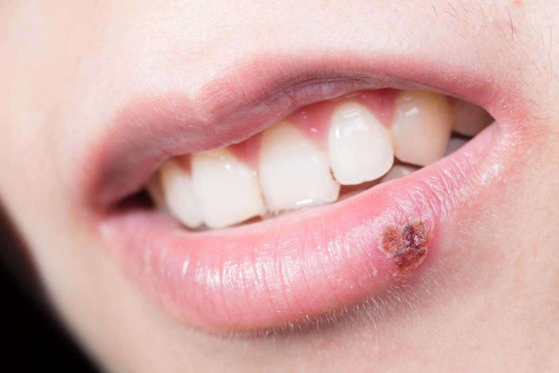 Why do I keep getting cold sores? Causes and prevention