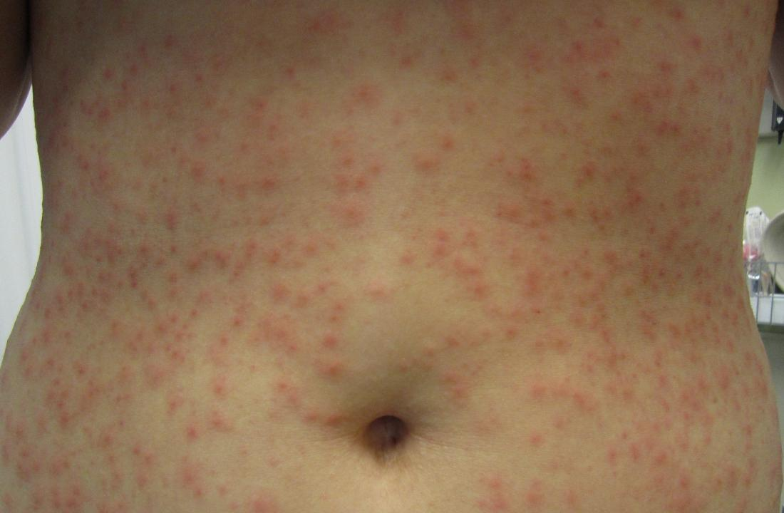 Hot tub folliculitis: Pictures, symptoms, diagnosis, treatment