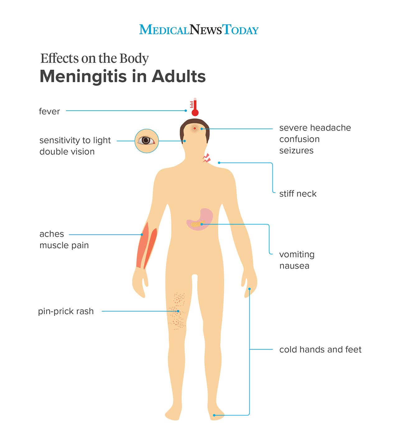meningitis in adults effects on the body series br image credit stephen kelly 2019 br