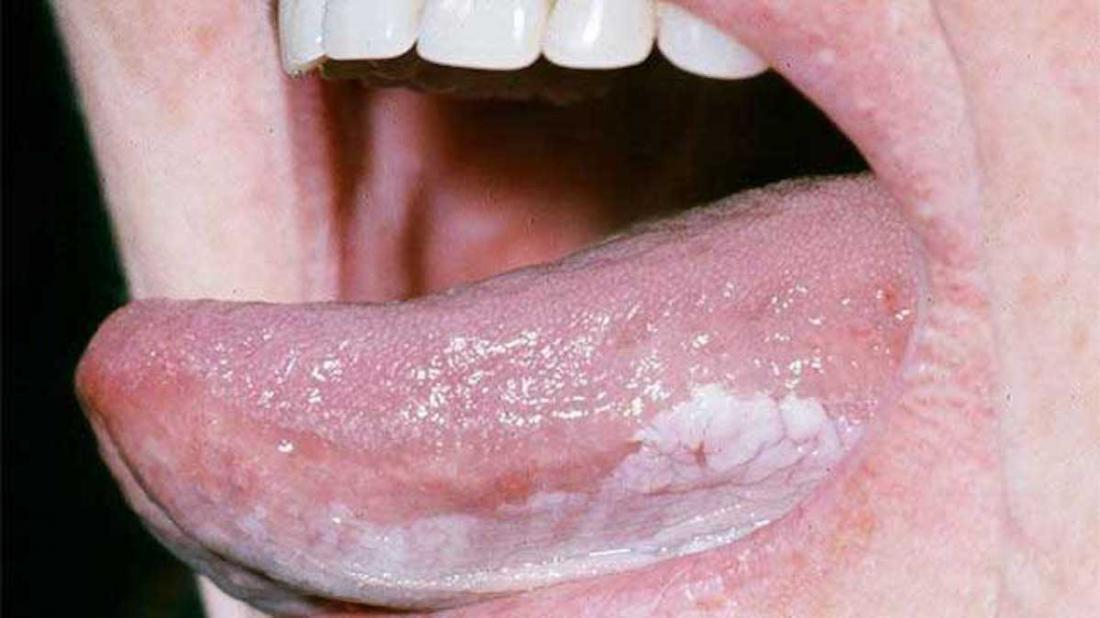 Early symptoms of cancer in men: Common warning signsEarly Oral Cancer Pictures