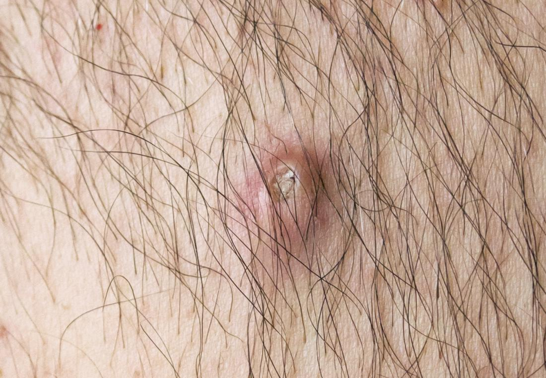 Cyst vs  boil: Identification, symptoms, causes, and treatments