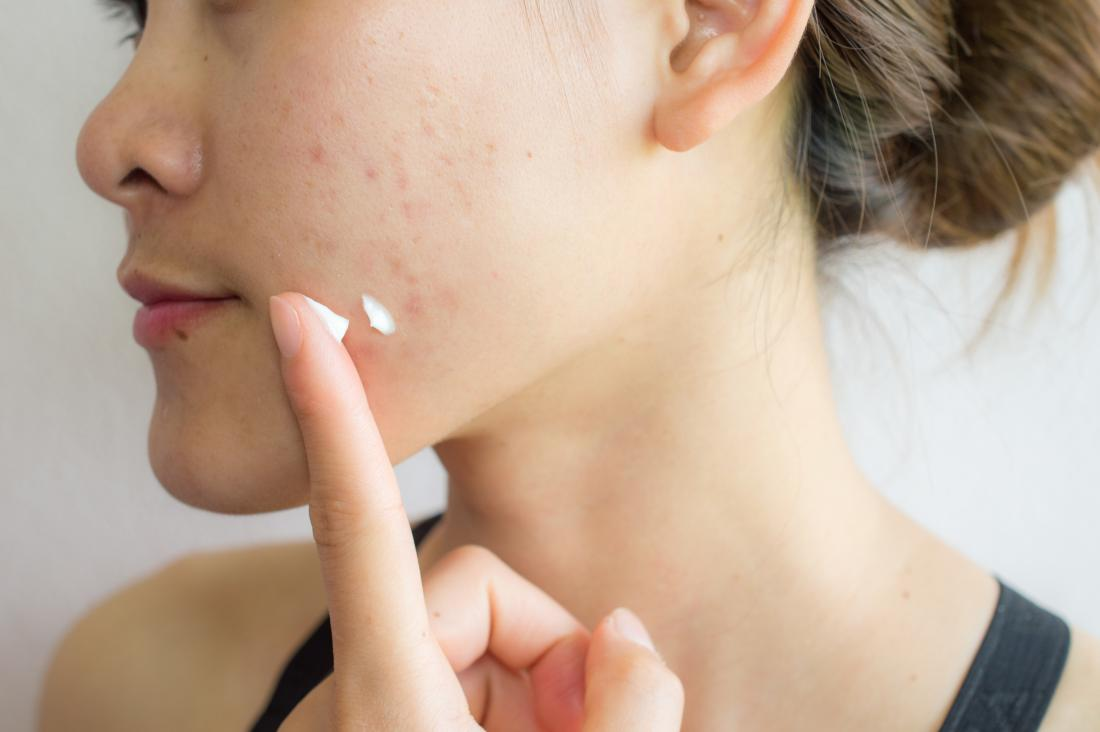 How to get rid of acne scars: Treatments and home remedies