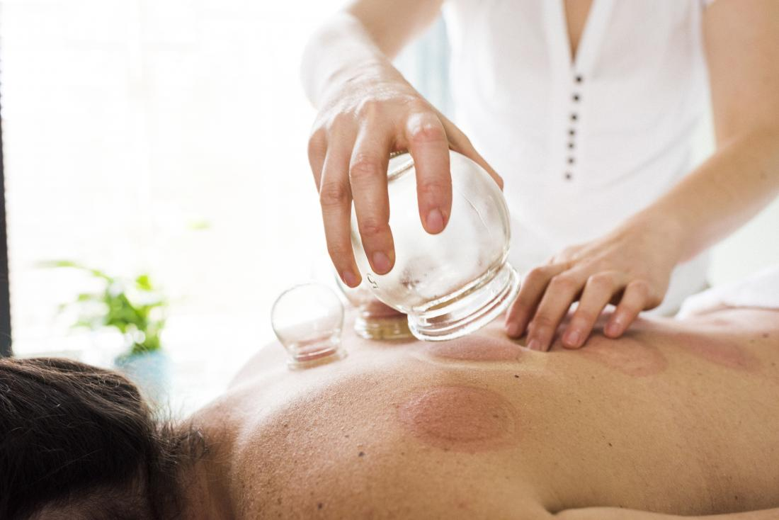 Does cupping therapy work and what are the benefits?