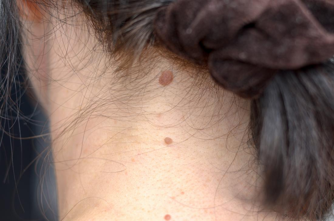 Lump on neck: Causes and pictures